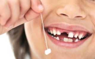 Выпадают молочные зубы