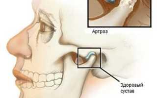 Причины боли в челюсти при открывании рта и жевании