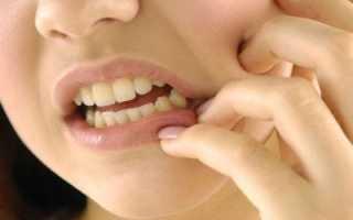 Снятие зубного камня в домашних условиях