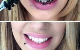 Чистка зубов углем