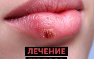 Быстрое лечение герпеса на губах в домашних условиях
