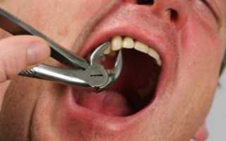 Припухлость щеки после удаления зуба мудрости