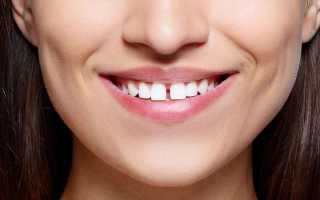 Как убрать диастему передних зубов