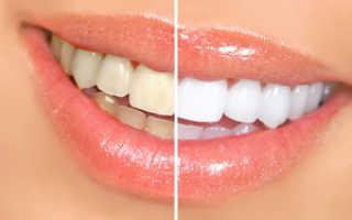 Какое отбеливание зубов самое безопасное и эффективное