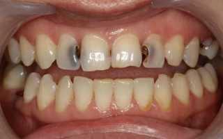 Полоскание зубов содой и солью