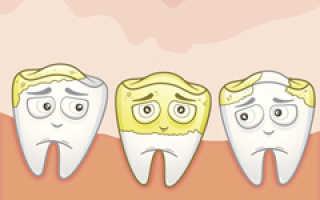 Чистка зубов от зубного камня
