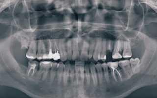 Правильная диагностика в стоматологии